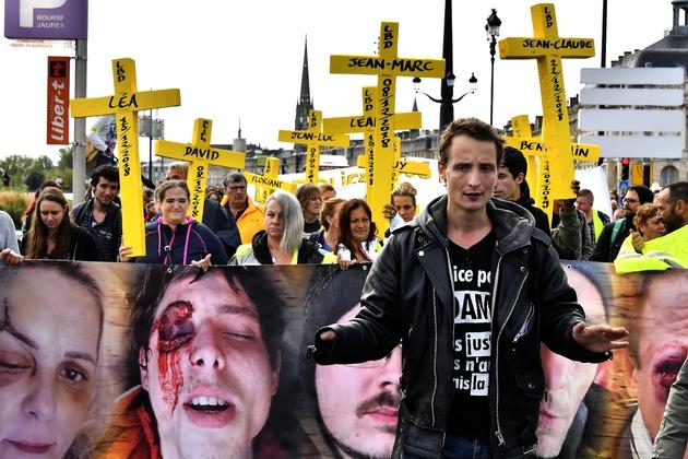 """Antoine Boudinet, un """"gilet jaune"""", pilier du mouvement à Bordeaux dont la main fut arrachée par une grenade lors d'une manifestation, en décembre 2018. Photo prise en janvier 2020"""